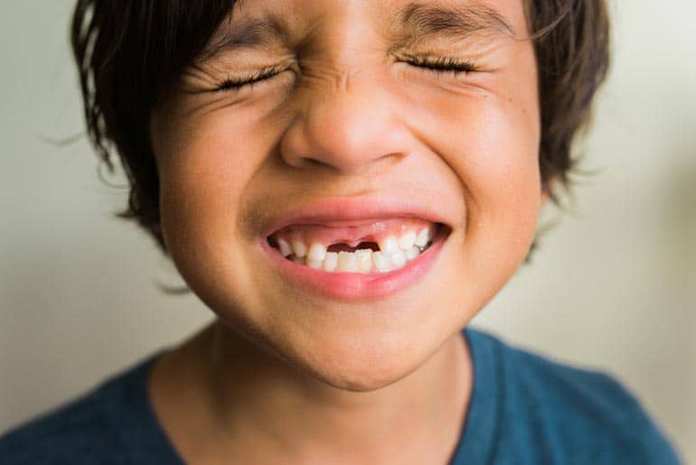 emergency dental care for boy's knocked out teeth