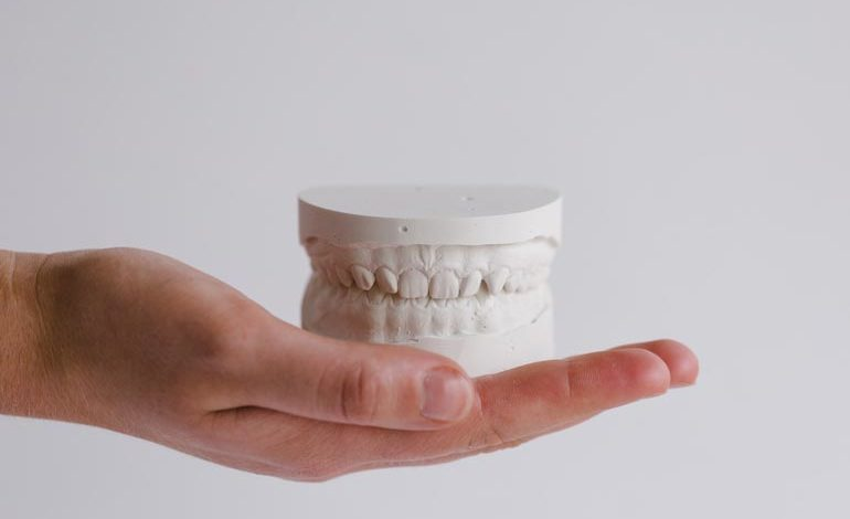 mouth model that needs tmj treatment